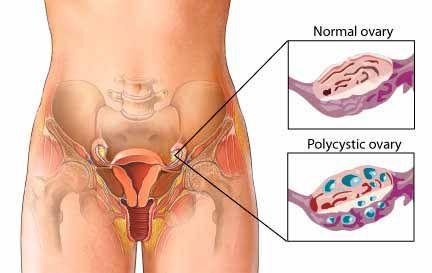 Remedios naturales efectivos para eliminar los quistes ovaricos desde la raiz. Dile adios para siempre a los molestos quistes ovaricos.