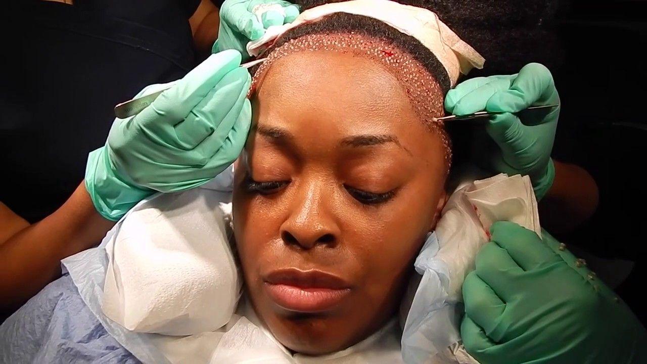 Pin by Hair Transplants Jacksonville on