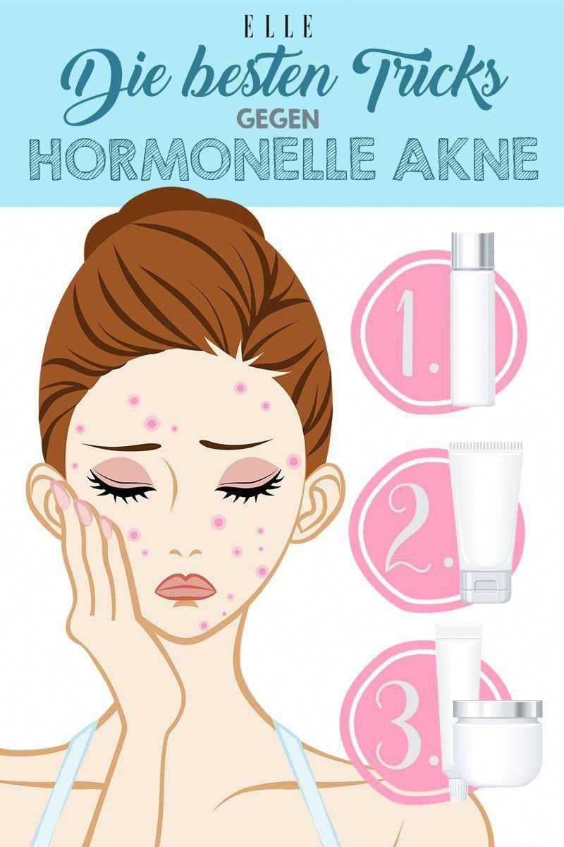 Hautprobleme können nicht nur mit der Ernährung oder falschen Pflege zusammenhängen Vor allem die hormonelle Akne sorgt bei vielen Frauen für zweitwei...