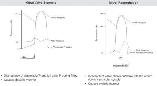 Mitral Stenosis Regurgitation Stenosis Mitral Valve Valvular
