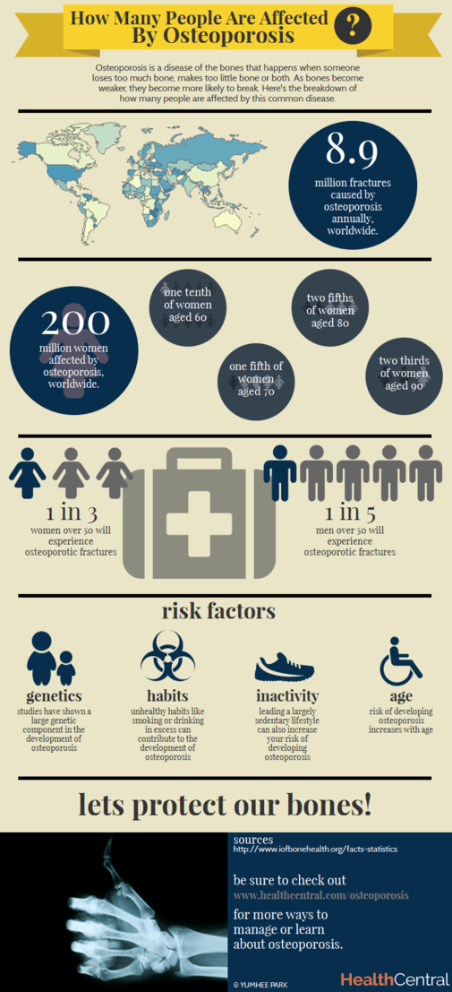 24++ How many people are affected by osteoporosis ideas
