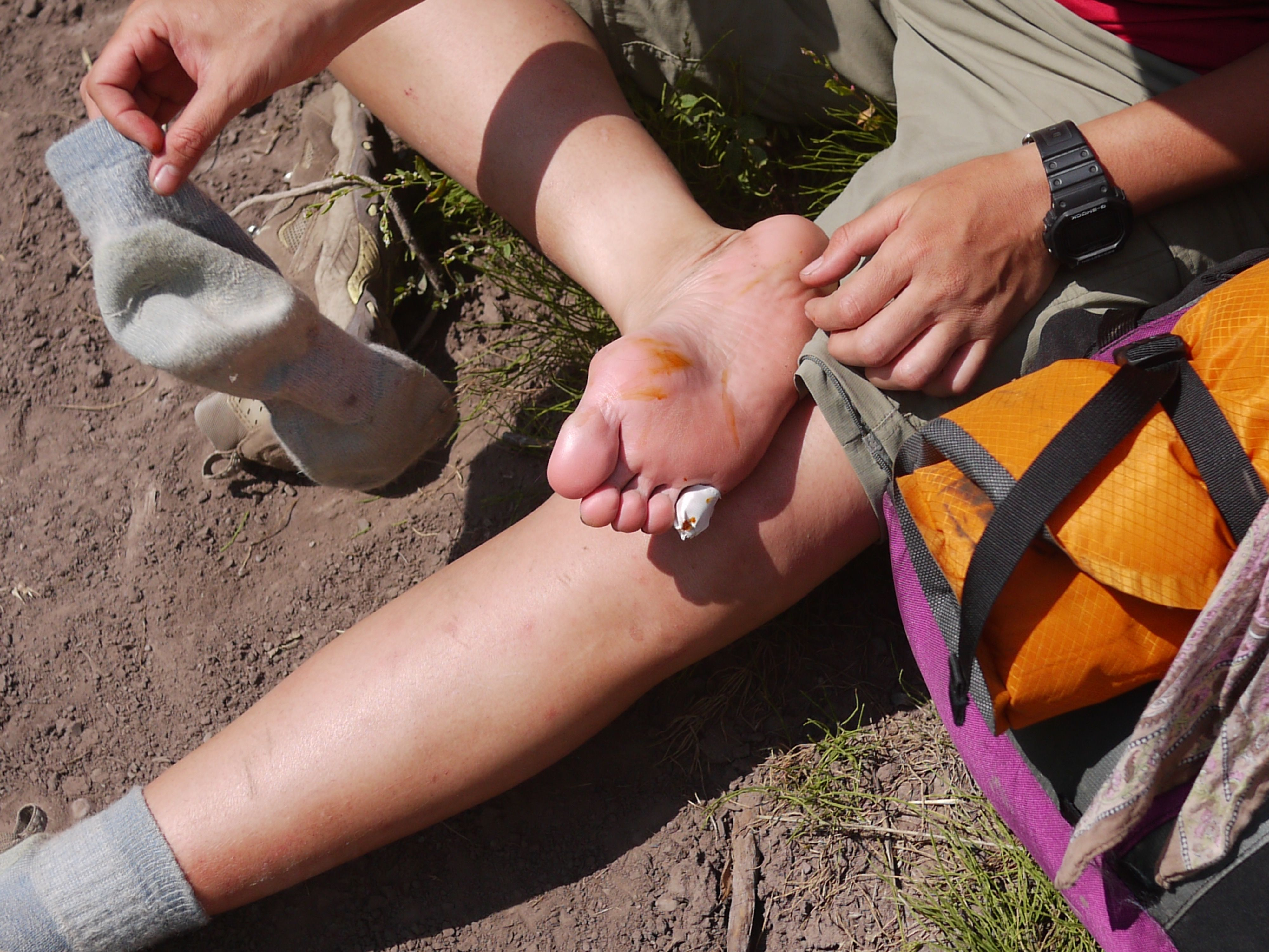 Blisters And Footwear With Images Wear You Out Grain Of Sand