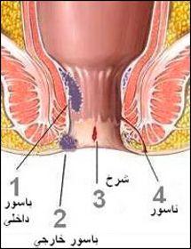 الناسور تعريف وأنواع وأسباب وأعراض وعلاج بالصور علاج البواسير Hemorrhoids