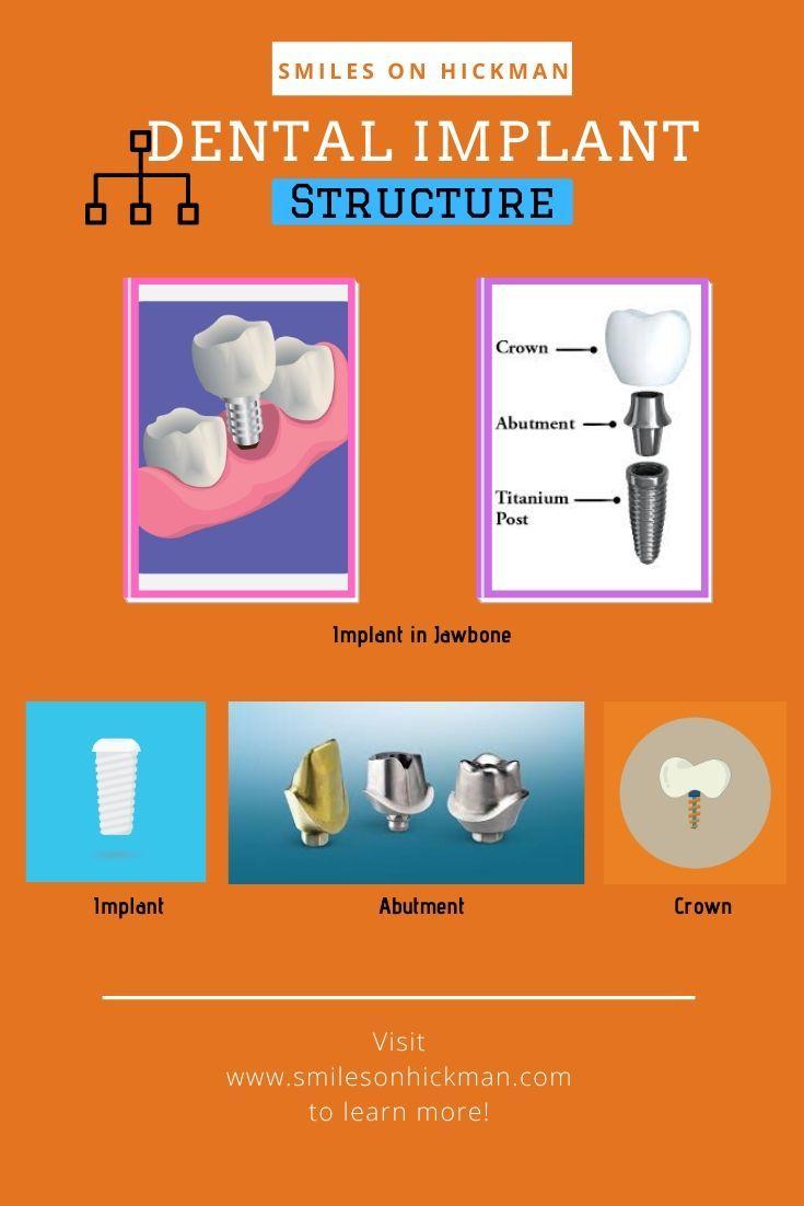 Dental Implant Structure Dental implants, Dental, Implants