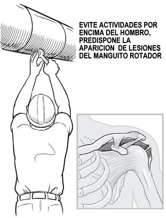 La mejor solución para Crema para dolor de espalda