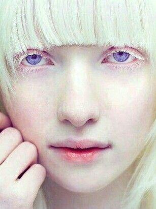 Albino Fashion Model Nastya Kumarova S Violet Eyes Albino