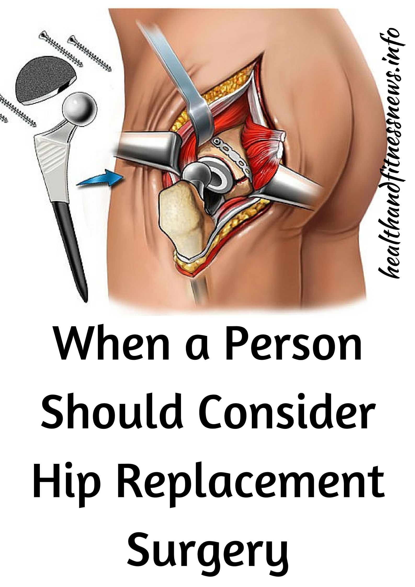 When a Person Should Consider Hip Replacement Surgery | RA ...