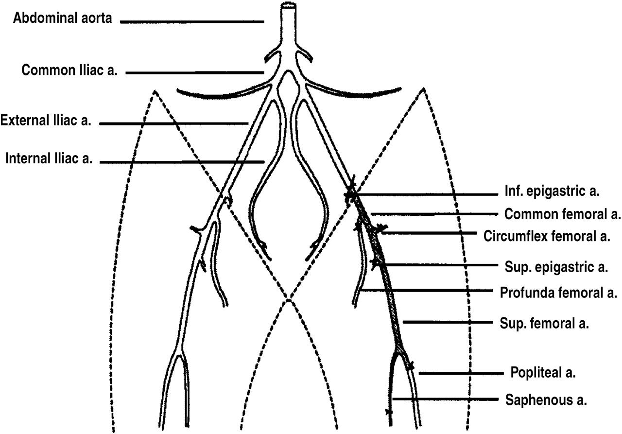 Doppler Waveform In Femoral Artery Before And After The