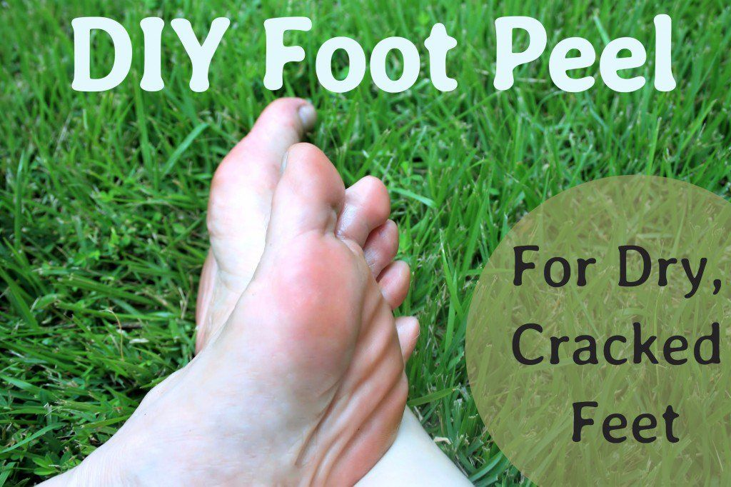 A Diy Peel For Dry Cracked Feet Hair Beauty Foot Peel