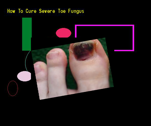 How to cure severe toe fungus - Nail Fungus Remedy. You have nothing to lose! Visit Site Now