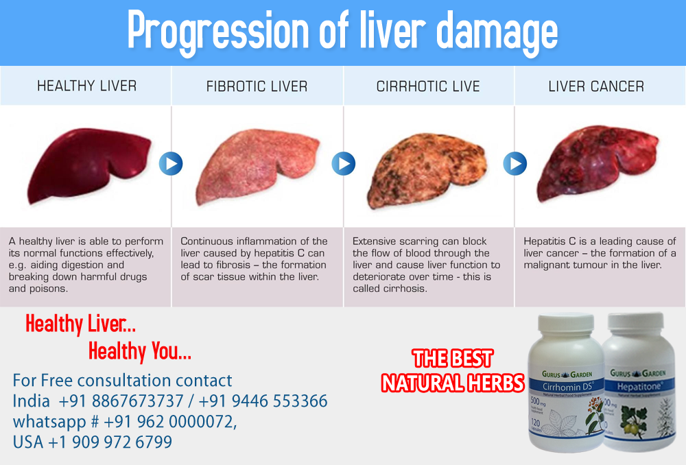 Progression of liver damage