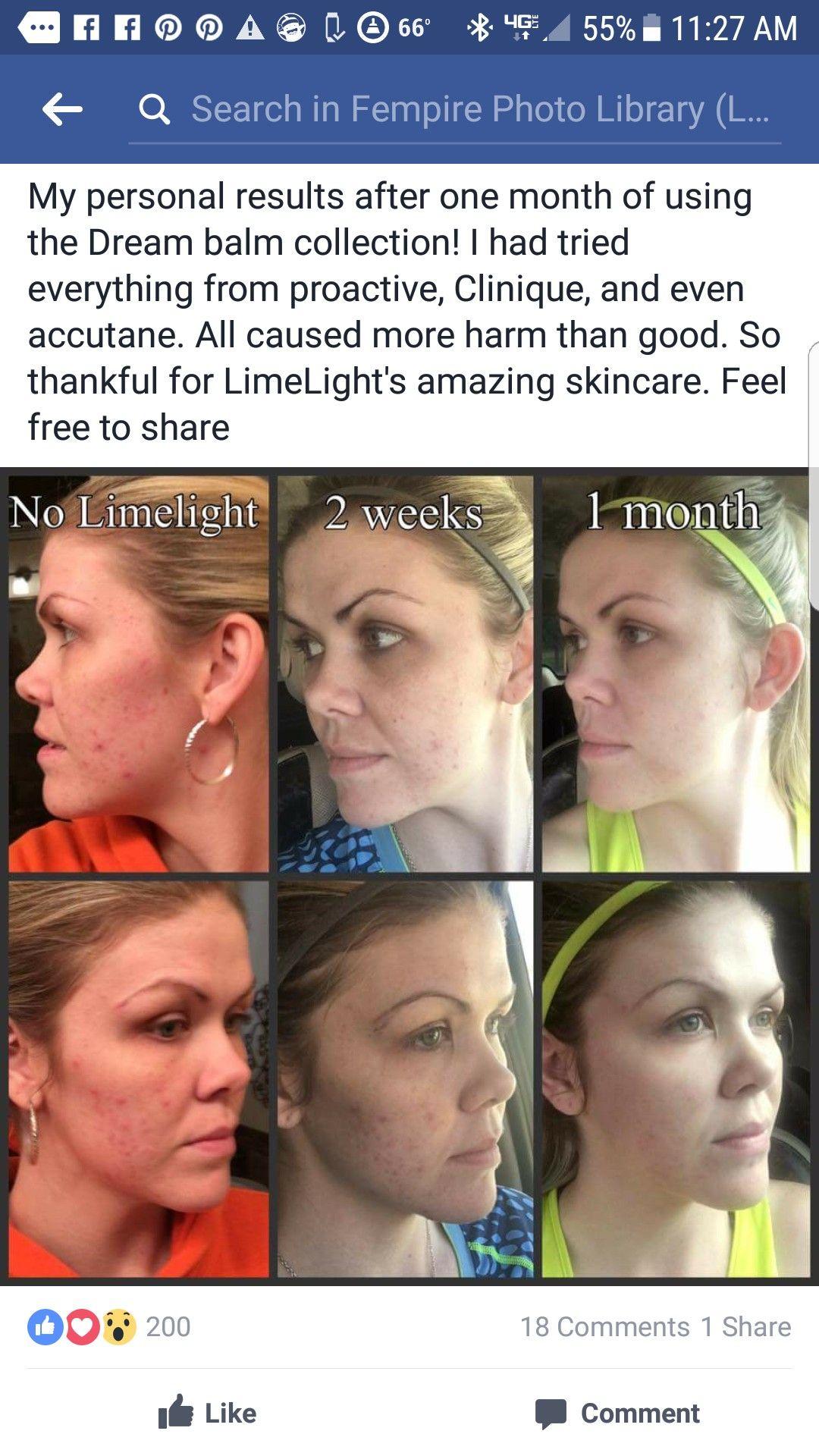 Our dream cream kit. Awesome results! 1 week time. Phanessa30@yahoo.com Www.limelightbyalcone.com/vanessak.  #acnecure #acnecream #facecream #pimplecream #acne #cream #face #results #reddness