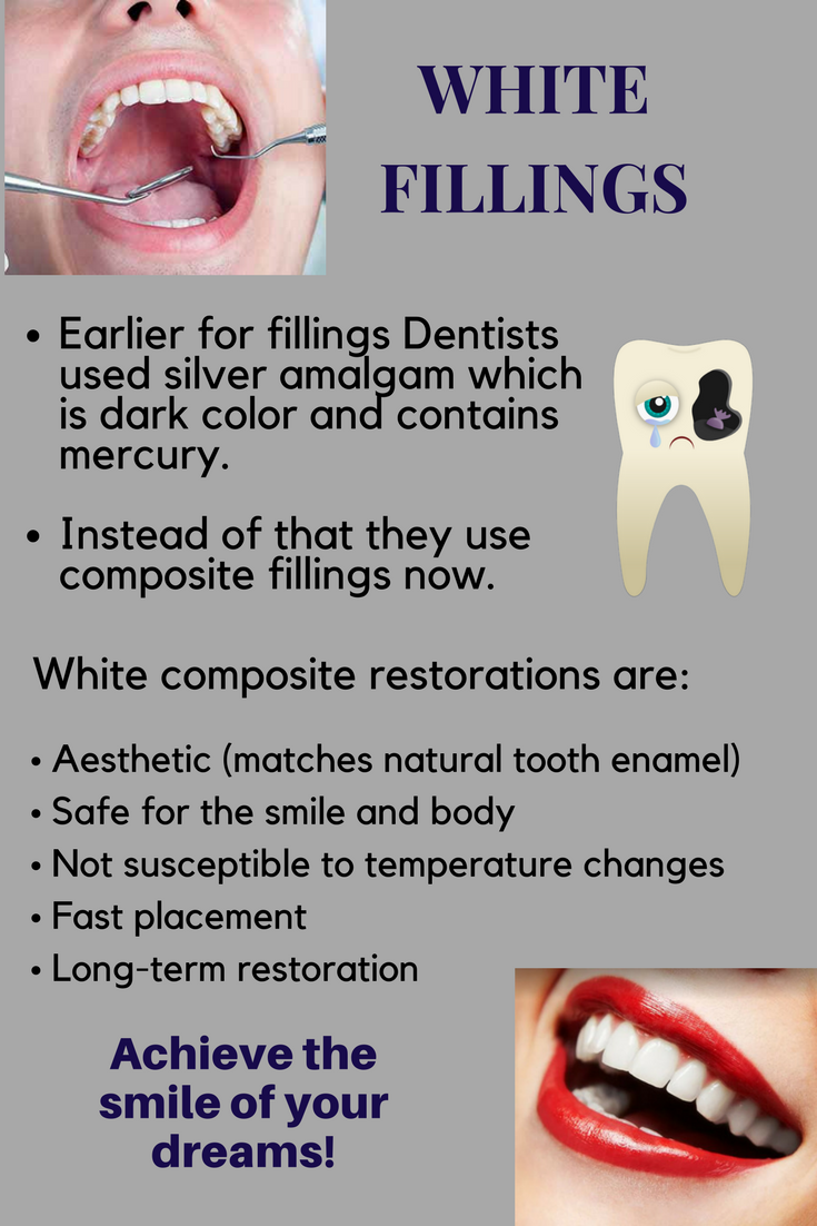 Fillings Are Restorations That Are Used To Fill Holes Left Behind Where Tooth Decay Has Formed Decay Also Known As Cavities Can Dental Dentistry Teeth Care