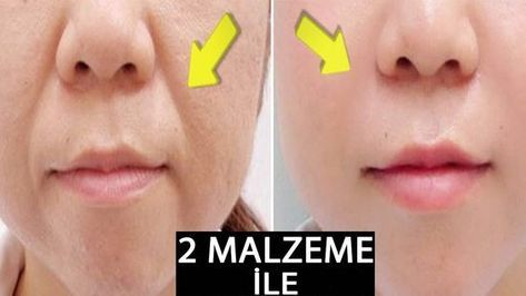 Photo of 2 DAYS DO THIS – COLLECT SURFACES TO LIP OVER WRINKLES …