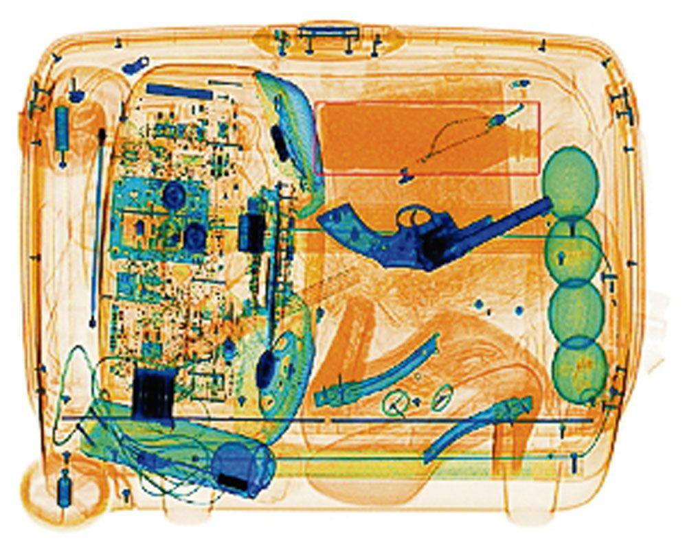 фото с интроскопа медицинская карточка, несгибаемая