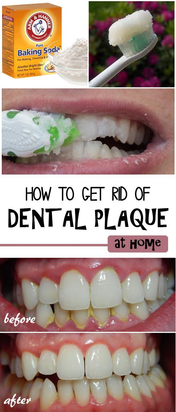 to Remove Dental Plaque Maintaining good oral health is important for overall health and confidence, and plaque is a common problem. You may notice it as a hard yellowish layer, also called calculus, on your teeth. Removing plaque usually requires a visit to your dentist, however you can remove it at yourself at home using natural remedies.Main