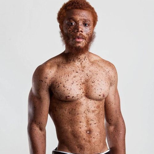 Accept. black man redhead apologise, but