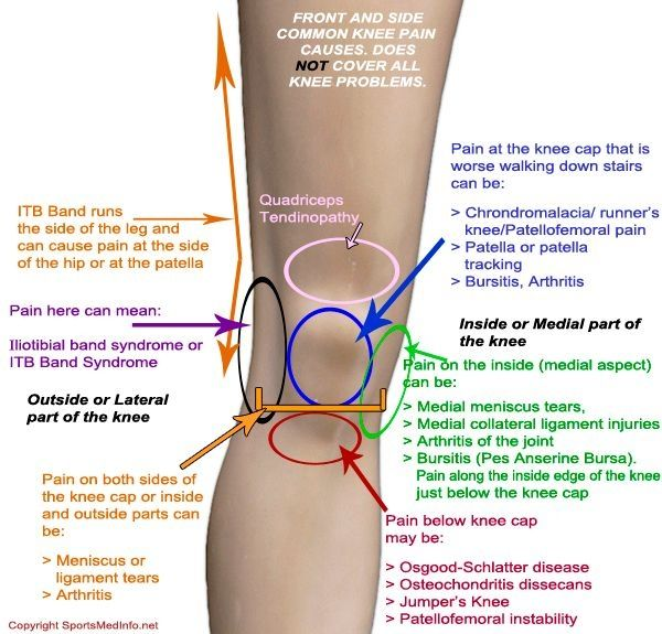 Potential Sources of Knee Pain  It doesn't say diaphragm