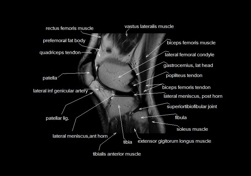 Cross Sectional Anatomy Of The Knee Kneeanatomy Radiology