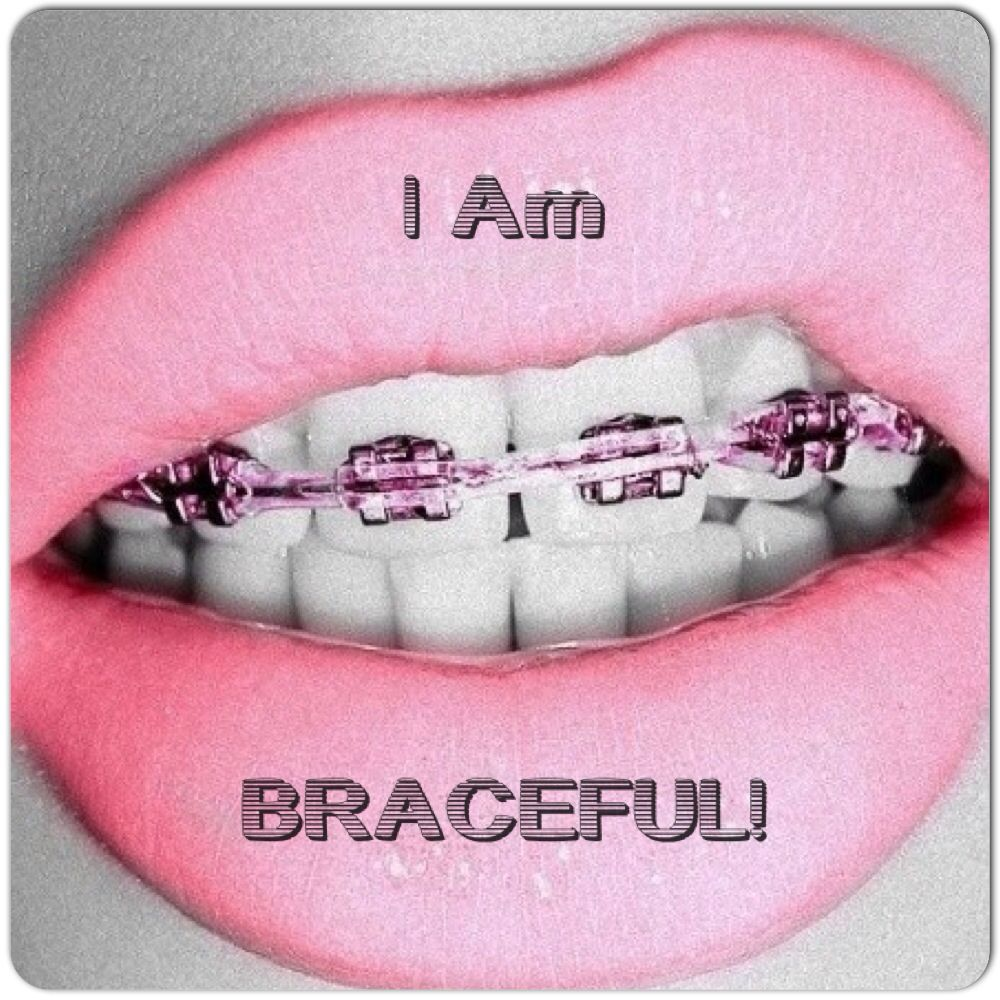 Park Art|My WordPress Blog_Can You Still Get Braces With Crowns