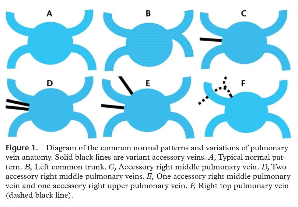 Variant pulmonary vein anatomy | Radiology | Pinterest | Radiology