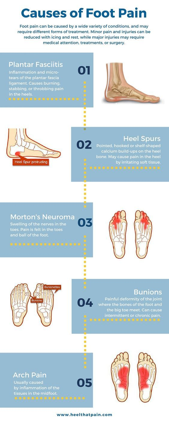 Foot Pain Chart Do You Know What S Causing Your It May Be One Of A Number Conditions Plantar Fasciitis Heel Spurs Bunions