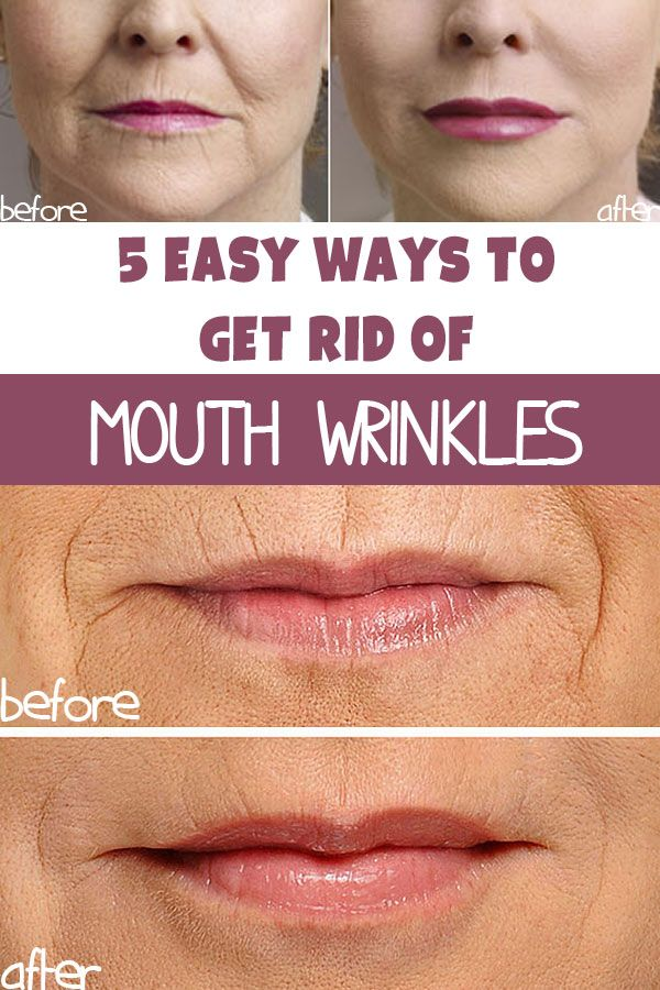 5 Ways To Get Rid Of Wrinkles Around The Mouth Own Kind Of Beauty Mouth Wrinkles Sagging Skin Facial Oil