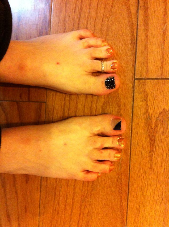 Feet Big toes: Kiss Gel Dress \