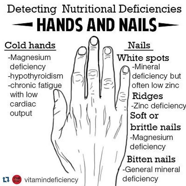 #Repost @vitamindeficiency with @repostapp. ・・・☝️ #