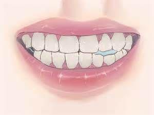 Pesquisa Como restaurar o esmalte dos dentes. Vistas 1155.