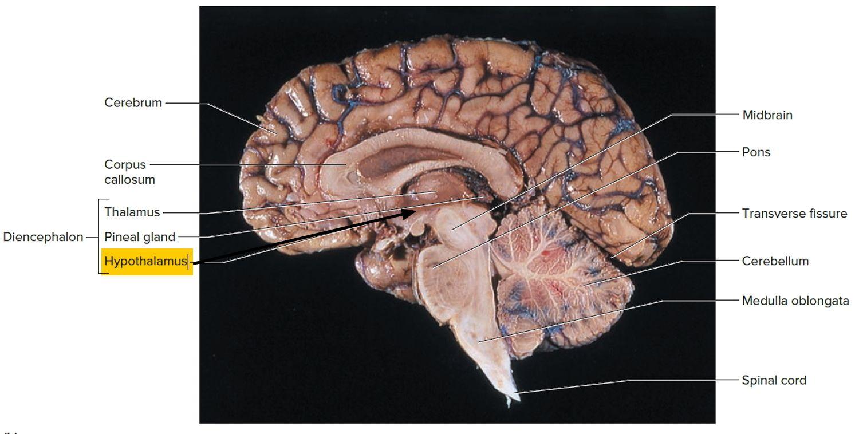 hypothalamus에 대한 이미지 검색결과 | Clinical Anatomy | Pinterest ...