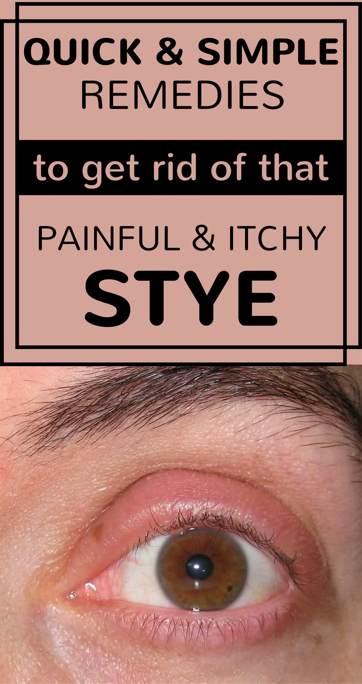 A stye is a red bump, resembling a small pimple on the