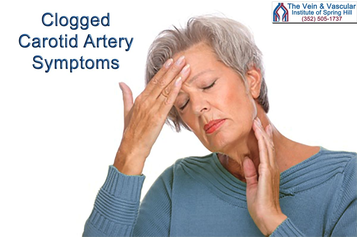 Clogged Carotid Artery Symptoms If You Have Blockage In
