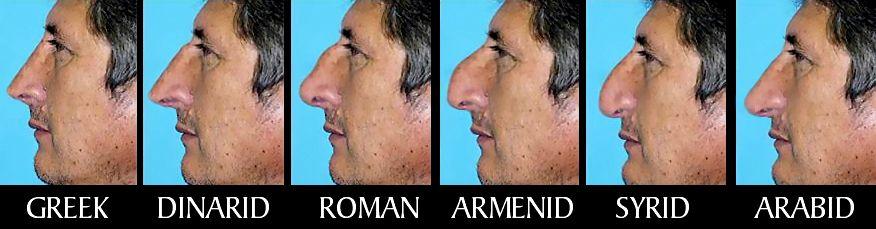 Pin By Sebastian Roman On Art References Human Nose Shapes Human Nose