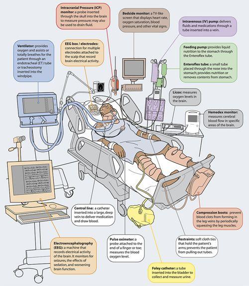 UC Neurocritical Care   UC Health   Icu nursing, Critical ...