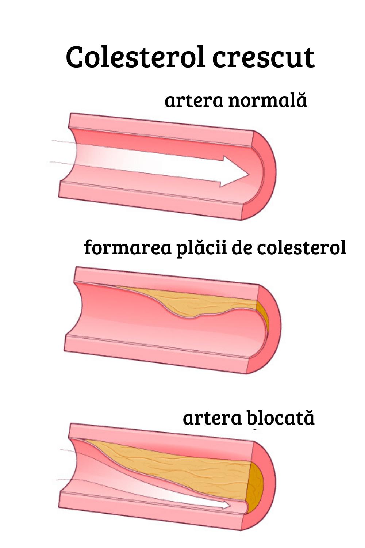 varicoză și colesterol ridicat