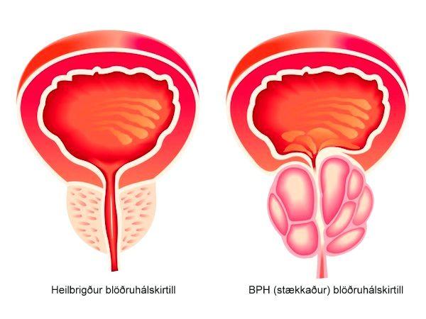 bph nella prostata