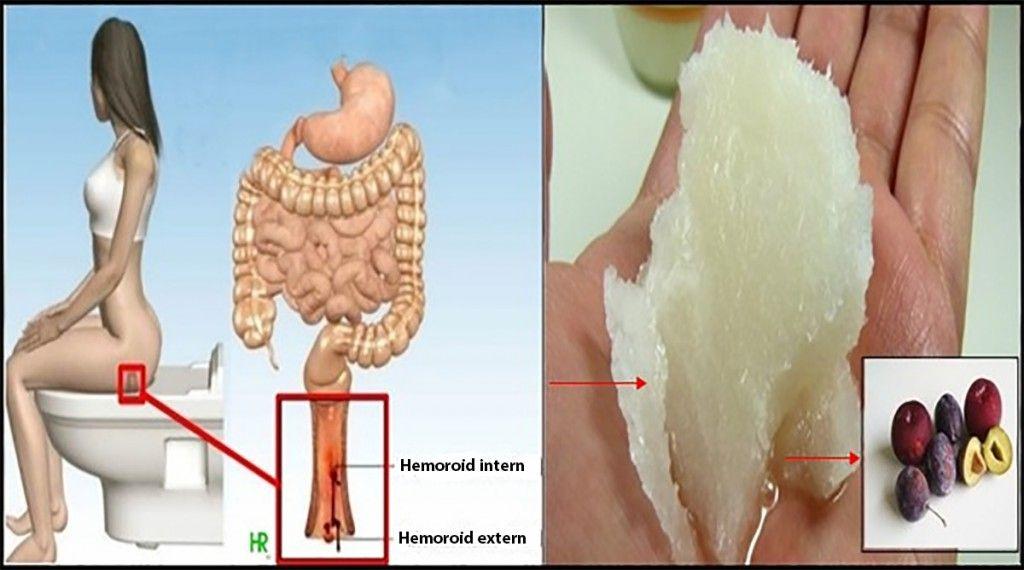cum se vindeca durerea în articulația încheieturii