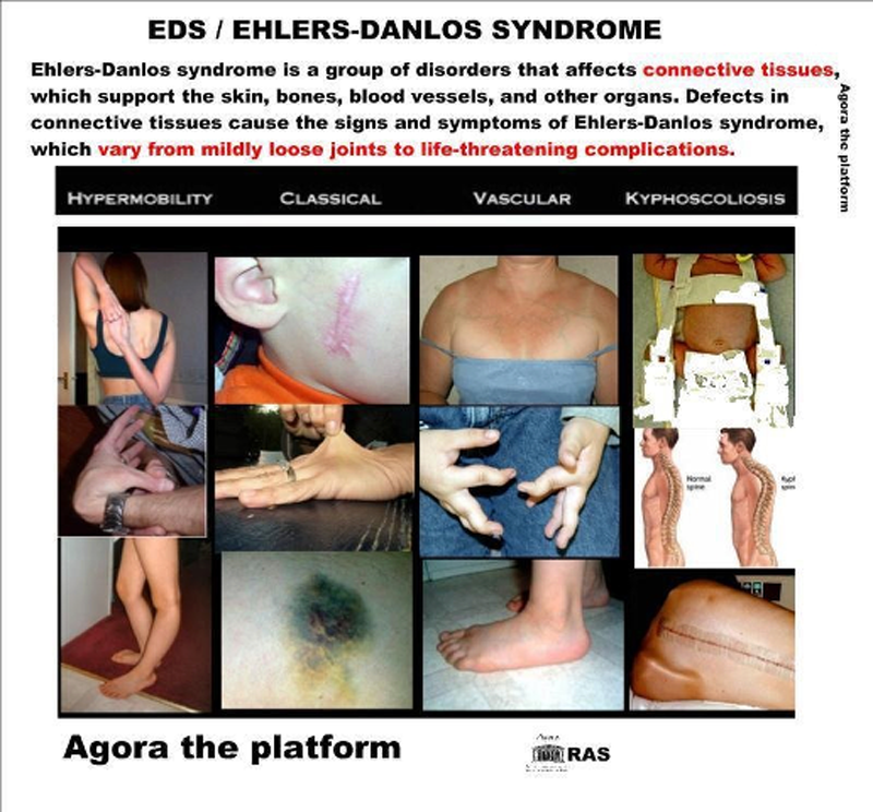 Ehlers Danlos Syndrome signs and symptoms. Health