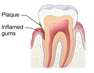 Teeth Gums Diagram Data Wiring Diagram Blog