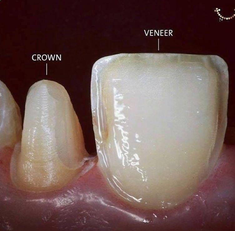 Crown Vs Veneer Dental Dental Disease Dental Health Dental Healthcare Dentist Fitness Gum Disease Health Healthcare Dental Dental Crowns Dental Veneers