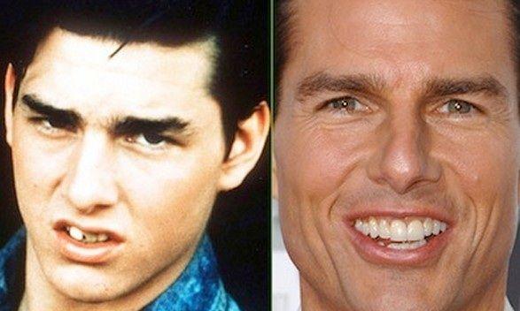Tom Cruise teeth work: Besides nose job, botox injections ...