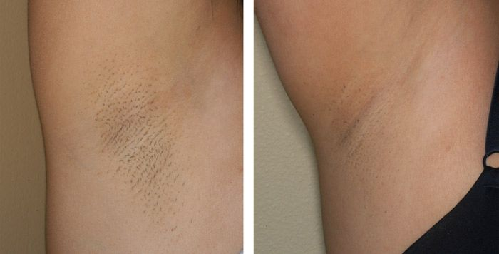 Laser Hair Removal Before And After Photo Gallery - Lewen Cosmetic Center  Laser Hair Removal -1619