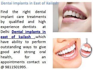 Get best dental implants treatments in east of kailash. http://www.delhi-dentist-implant.in/full-mouth-rehabilitation-in-delhi.html