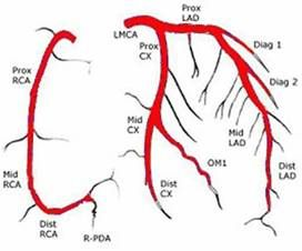 Lad in heart anatomy
