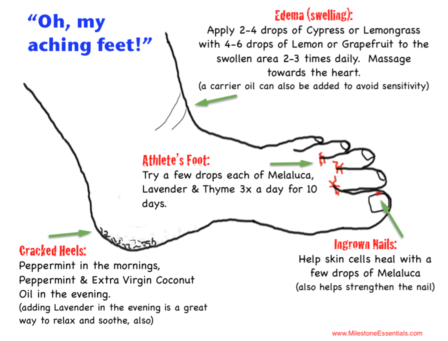 oh my aching feet Oh my aching feet plantar fasciitis may be the problem by heather benjamin plantar fasciitis is a foot condition that most commonly causes heel pain it is inflammation and pain of the thick band of tissue that runs across the bottom of your foot, called the plantar fascia.