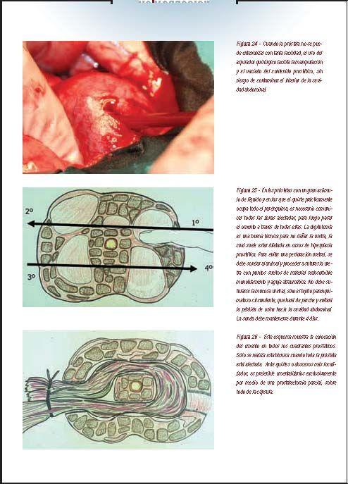 cirugía tradicional de próstata youtube