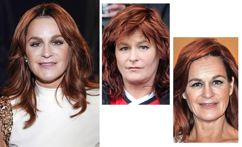 Michelle Schönheits Op