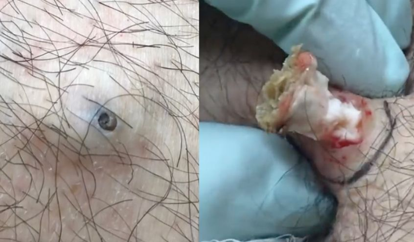 Huge Dilated pore of winer removal (VIDEO) | Health and