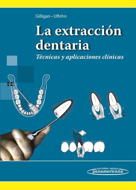 La Extracción Dentaria: Técnicas Y Aplicaciones Clínicas.  Http://www.medicapanamericana.com/Li…